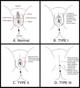 Représentation des différents types d'excision pratiqués